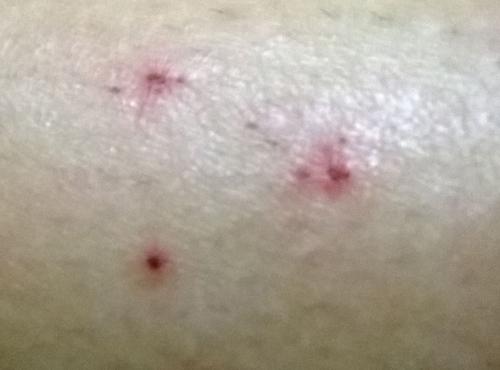 ブラジル人女性の傷跡